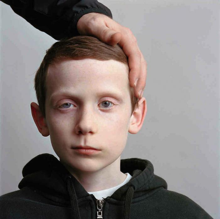 neuritis of the facial nerve in children