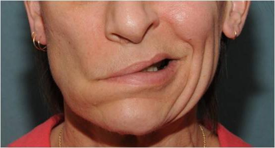 treatment of neuritis of the facial nerve