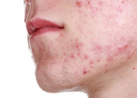 Liniment synthomycin acne