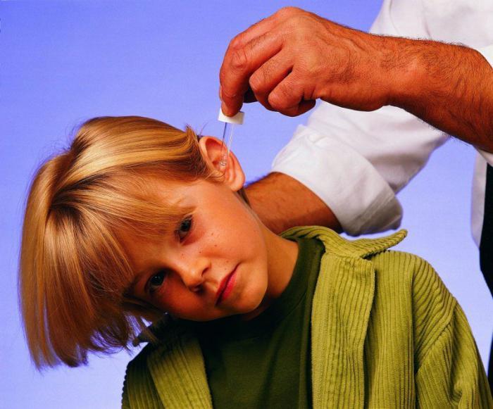 Болит голова у ребенка 12 лет