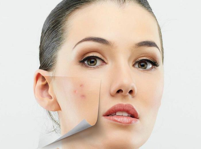 acne zincteral reviews