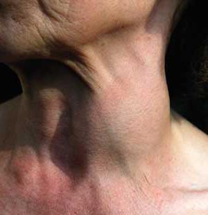 laryngeal cancer 3 degrees