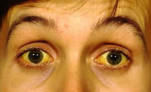 онкология печени симптомы