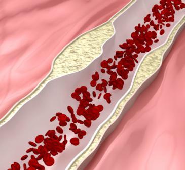 чем снизить холестерин в крови без лекарств