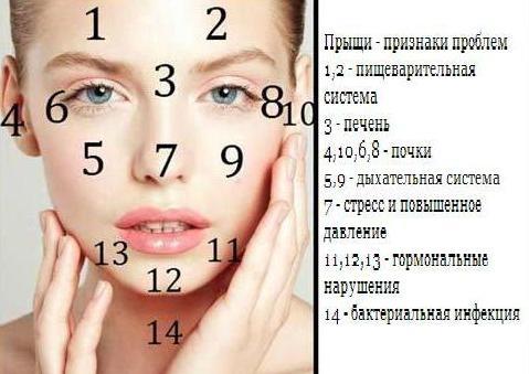 Угри на лице - лечение в домашних условиях без врача самому 43
