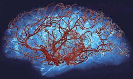 Препараты улучшающие мозговое кровообращение