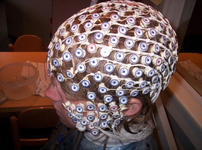 Сотрясение мозга последствия если не лечить