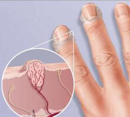 Лечение бородавок на пальцах — TARANTINO