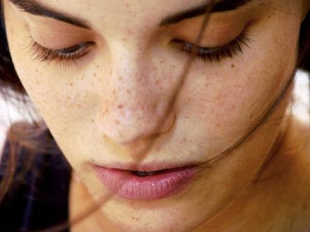 how to remove age spots on the face at home