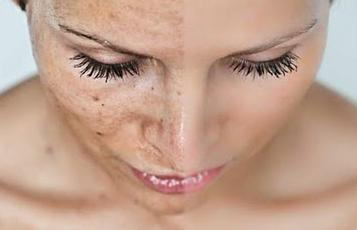 remove age spots on face