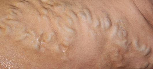 варикоз на ногах симптомы