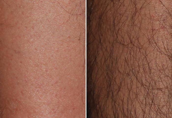 Как избавиться навсегда от волос на теле