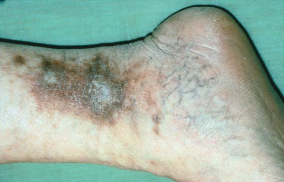 venous insufficiency photo