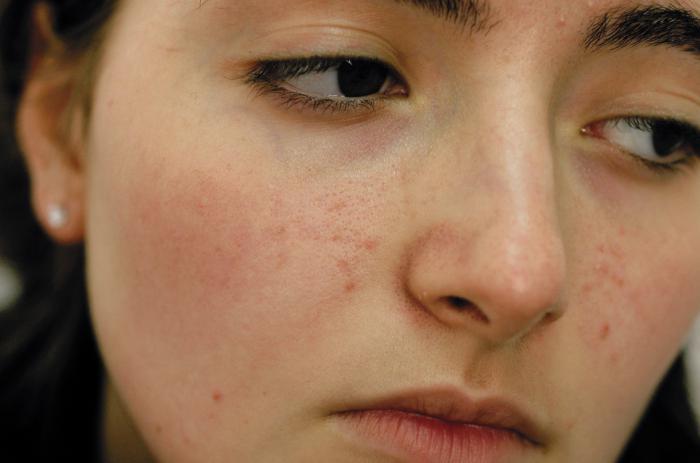 чистка лица ультразвуком. Отзывы