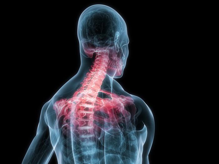 Боли в спине область почек