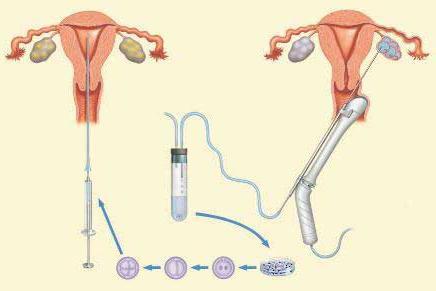 ЭКО оплодотворение, беременность после ЭКО
