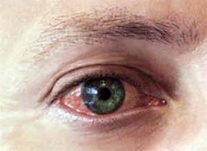 постоянно красные глаза причины и лечение