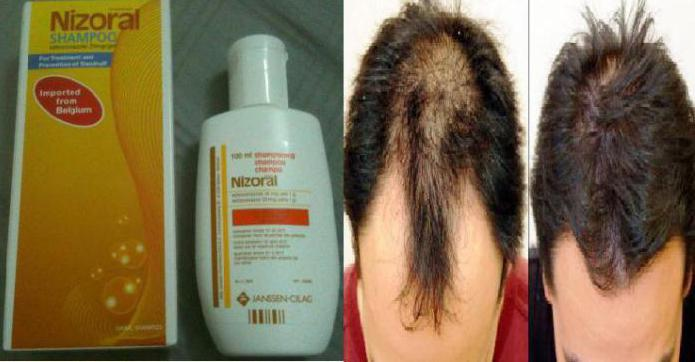 Низорал от выпадения волос