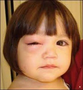 Ячмень на глазу у ребенка ячмень у