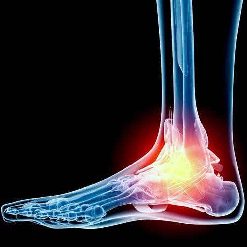 что такое артрит сустава