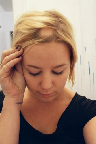 focal alopecia in women