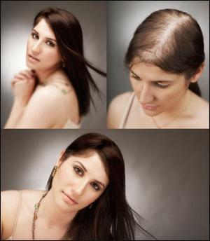 androgenic alopecia in women
