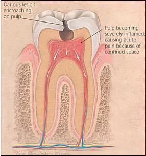 symptoms of pulpitis of the tooth