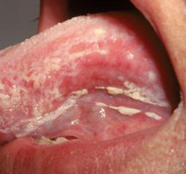 Молочница полости рта: причины, симптомы, лечение