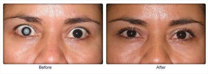 После операции катаракта мешает в глазу