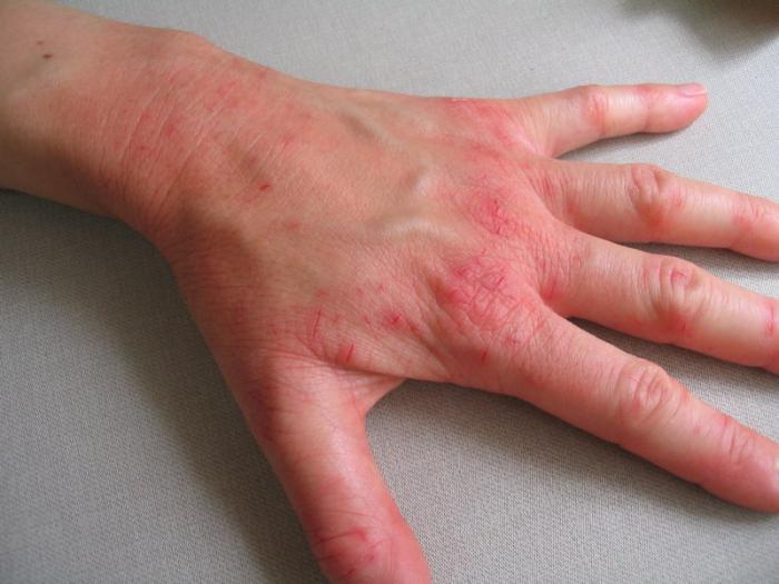 Клинический пример атопического дерматита