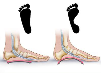 flatfoot treatment