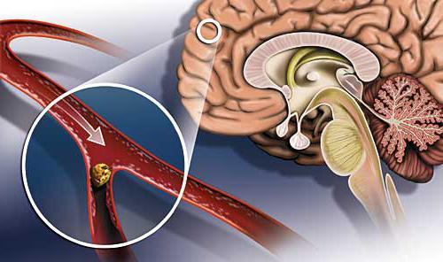 Бетасерк при атеросклерозе головного мозга