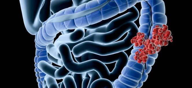 bowel cancer treatment