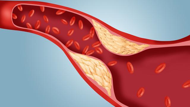как понизить содержание холестерина в организме
