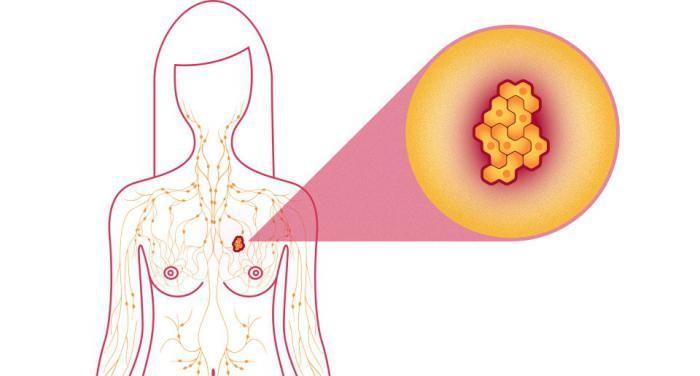 фиброзно кистозная мастопатия лечение