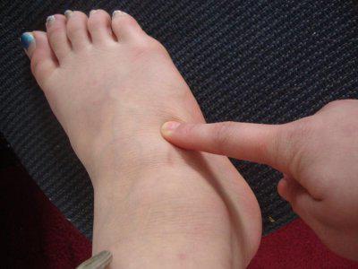боль в верхней части стопы