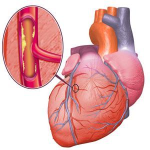 Что такое стенокардия? Симптомы, приступы, классификация, лечение ...