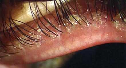 паразиты на ресницах человека