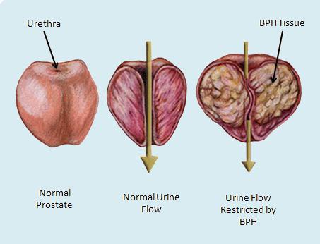 Аденома предстательной железы клинические рекомендации