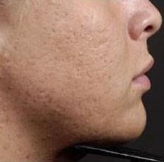 acne vulgaris dermnet nz - 233×230