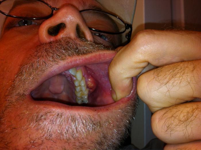 antibiotic treatment for flux