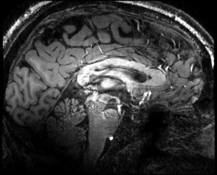 склероз сосудов головного мозга лечение