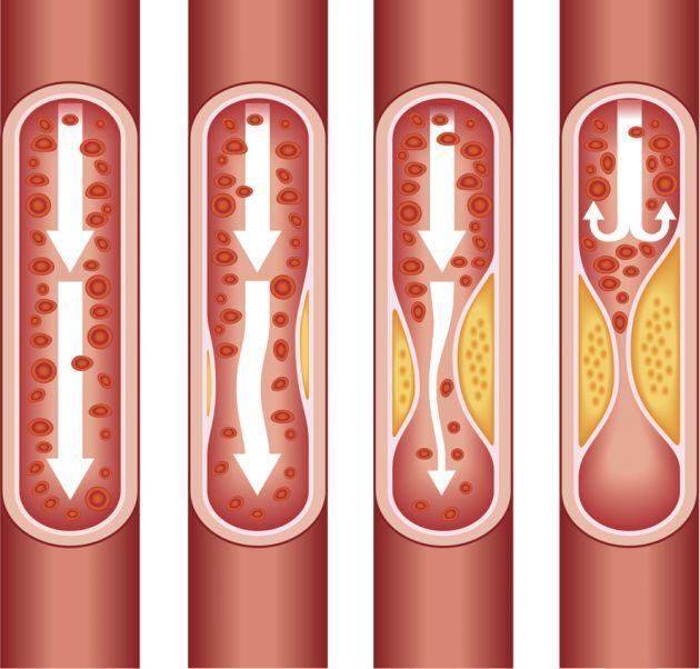 Какие препараты для печени снижают холестерин