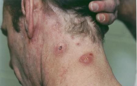 стафилококковая инфекция амоксициллин лечение