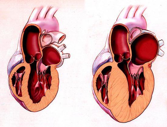 дисметаболическая кардиомиопатия