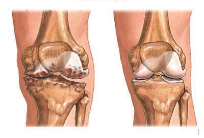 Отложение солей в суставах причины и лечение дисплазия тазобедренного сустава с подвывихом