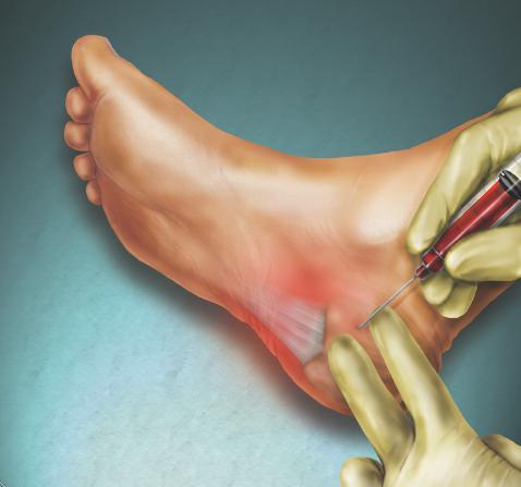Фасцит стопы симптомы и лечение — Полезный Блог