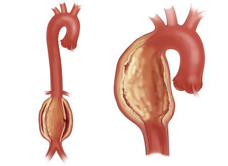 пневмосклероз атеросклероз аорты