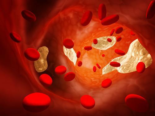 признаки атеросклероза аорты