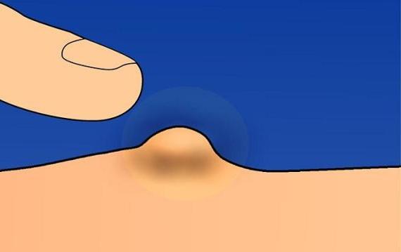 molluscum contagiosum ointment treatment